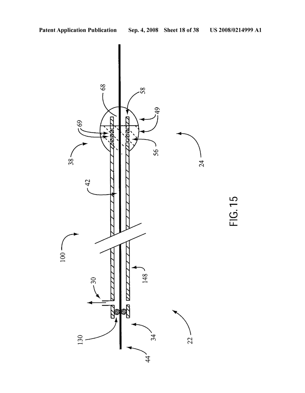 ANGIOPLASTY DEVICE AND METHOD OF MAKING SAME - diagram, schematic, and image 19