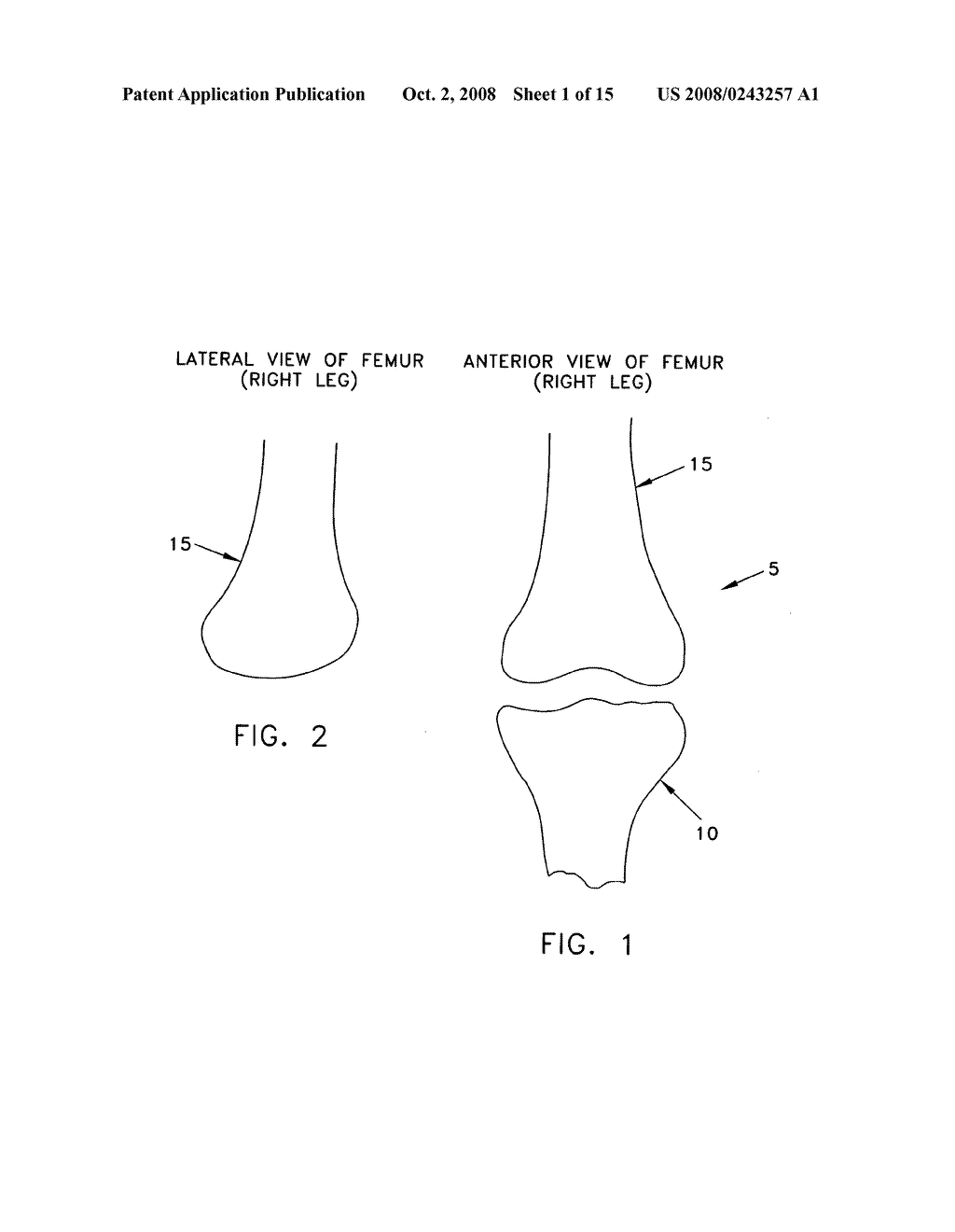 Method and apparatus for performing an open wedge, low femoral osteotomy - diagram, schematic, and image 02