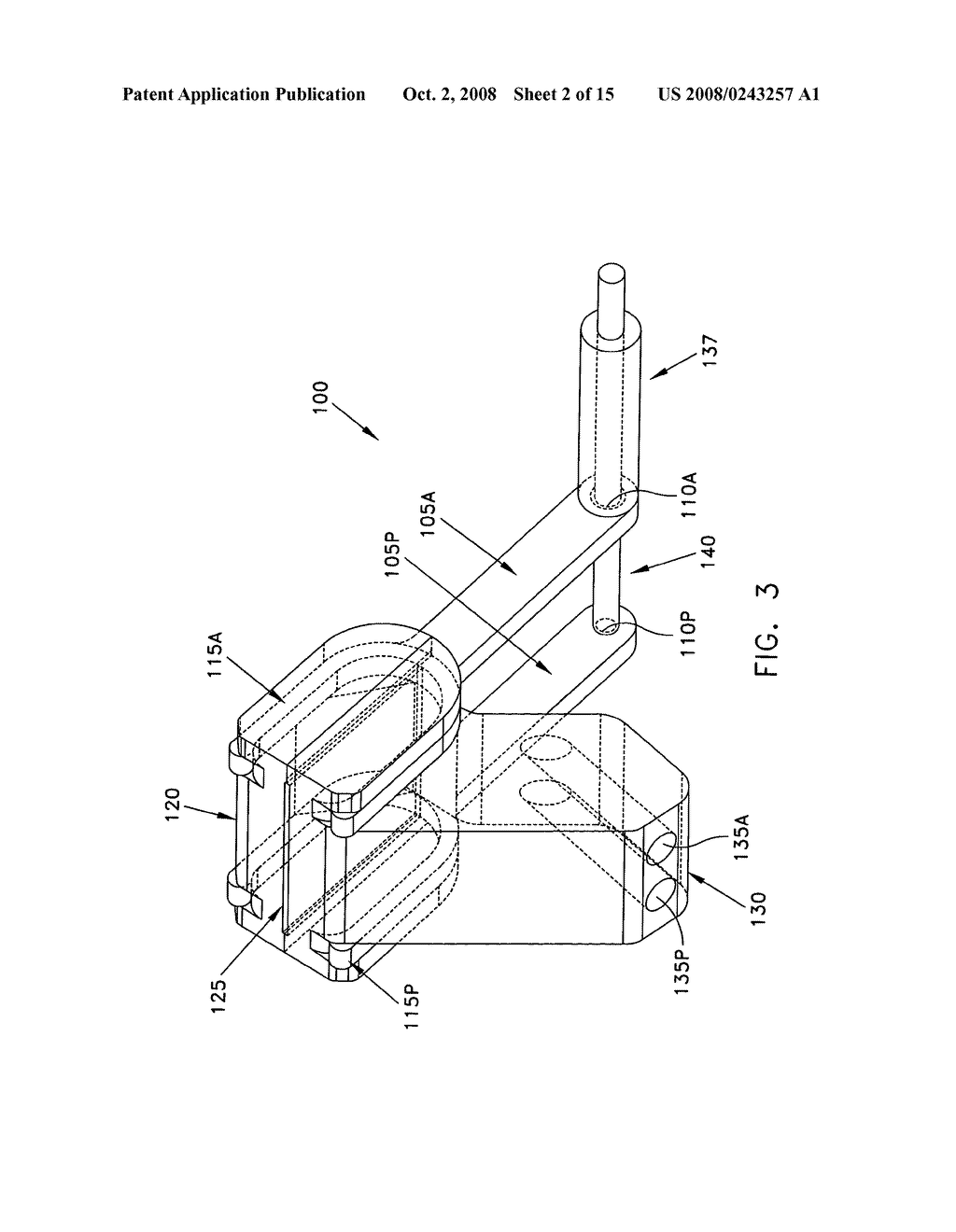 Method and apparatus for performing an open wedge, low femoral osteotomy - diagram, schematic, and image 03