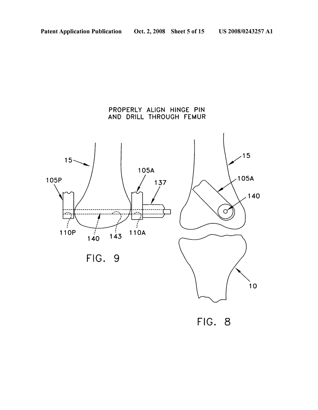 Method and apparatus for performing an open wedge, low femoral osteotomy - diagram, schematic, and image 06