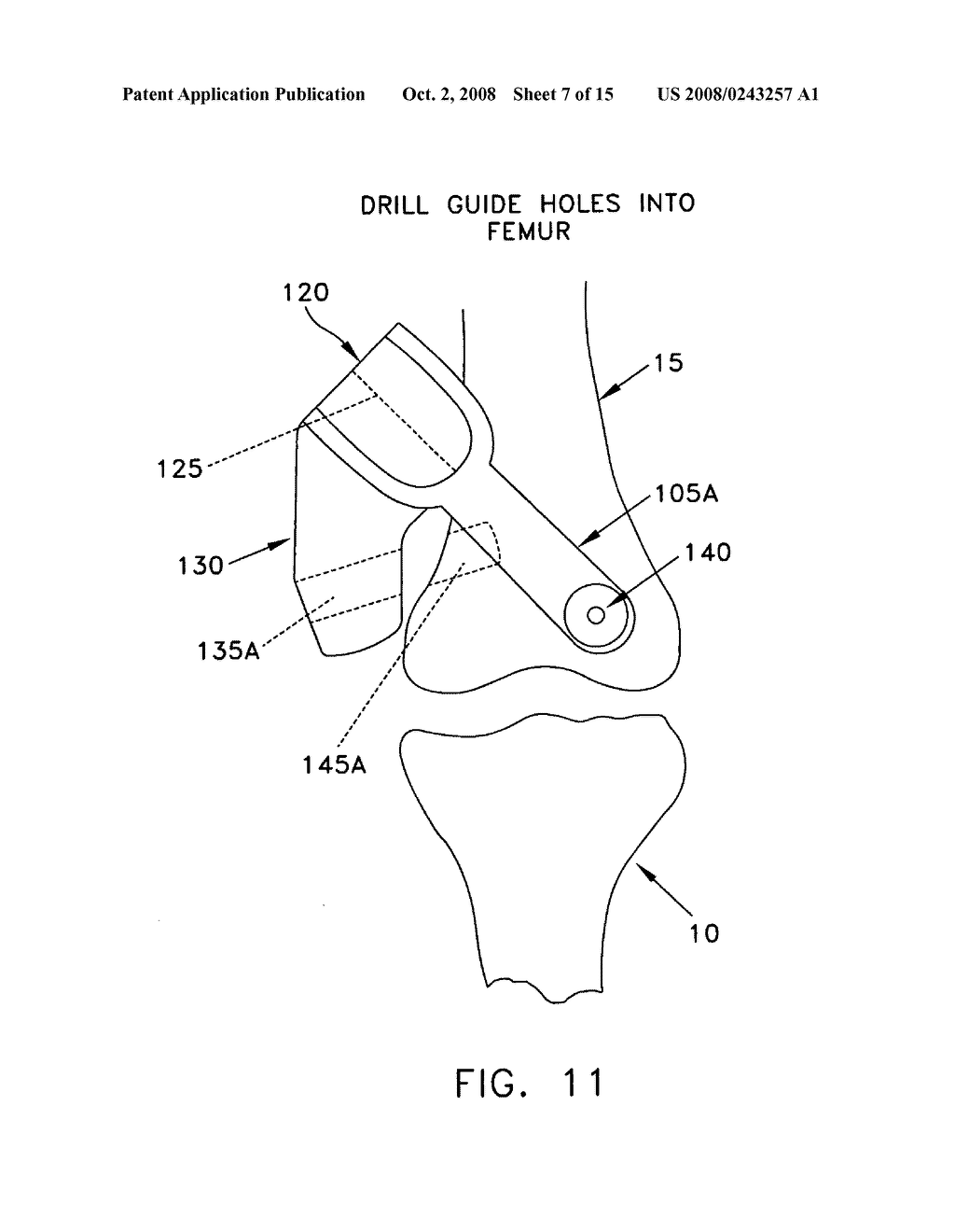 Method and apparatus for performing an open wedge, low femoral osteotomy - diagram, schematic, and image 08