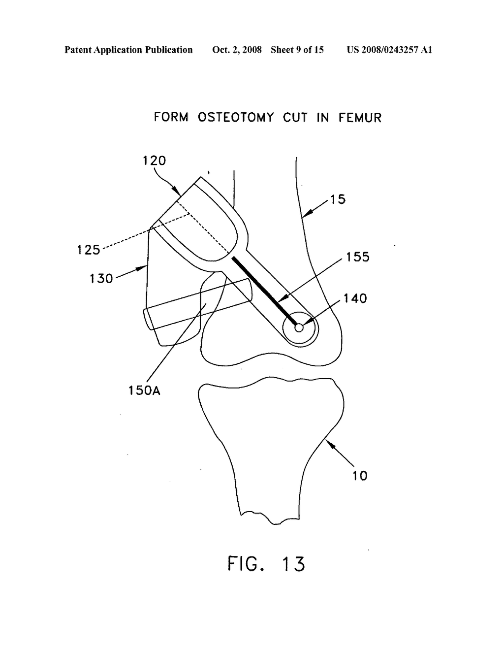 Method and apparatus for performing an open wedge, low femoral osteotomy - diagram, schematic, and image 10