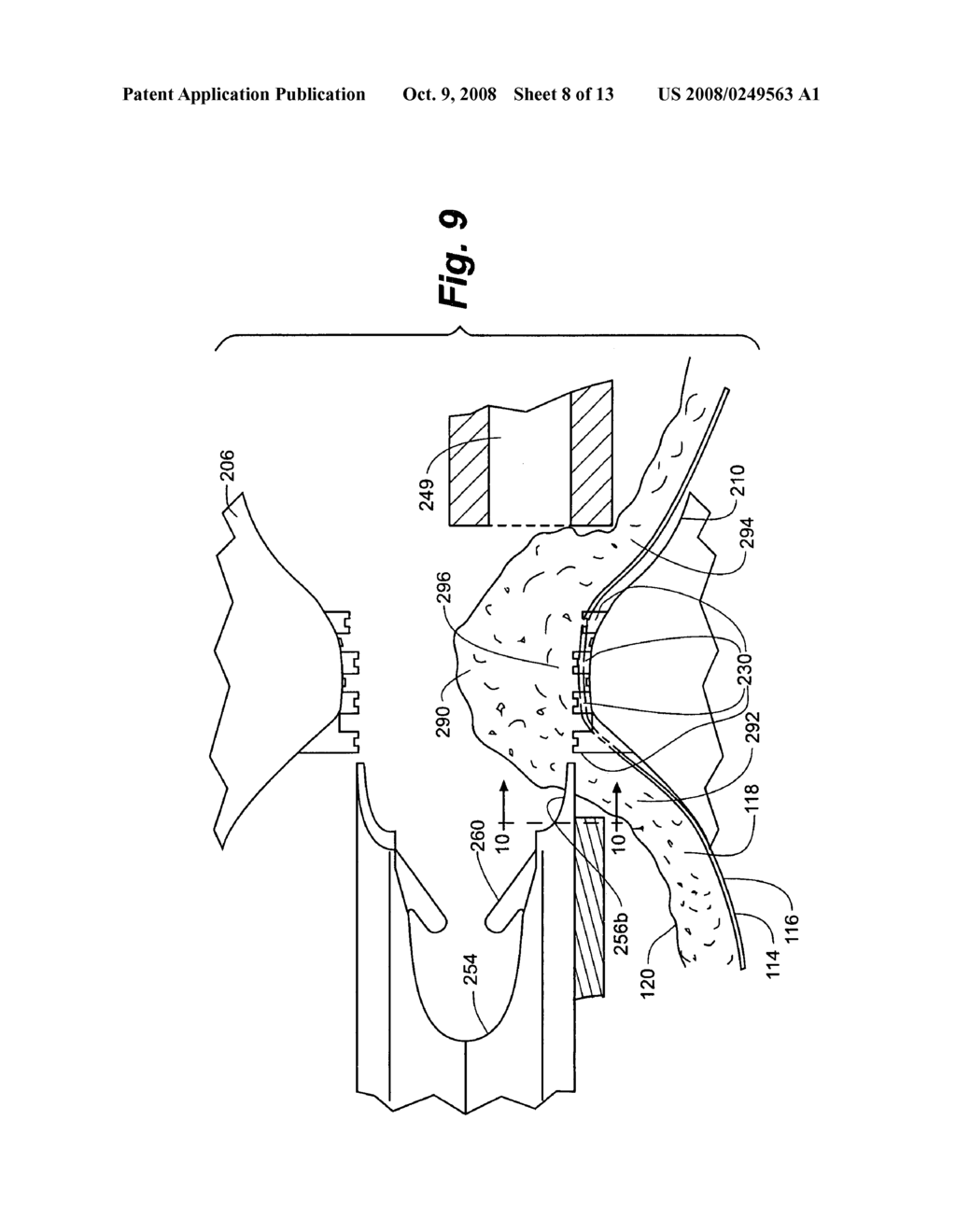 Method and apparatus for tissue fastening - diagram, schematic, and image 09