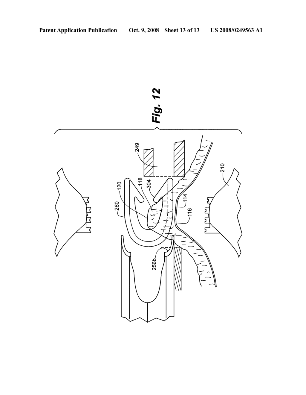 Method and apparatus for tissue fastening - diagram, schematic, and image 14