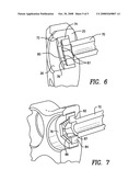 Hip fracture device with static locking mechanism allowing compression diagram and image