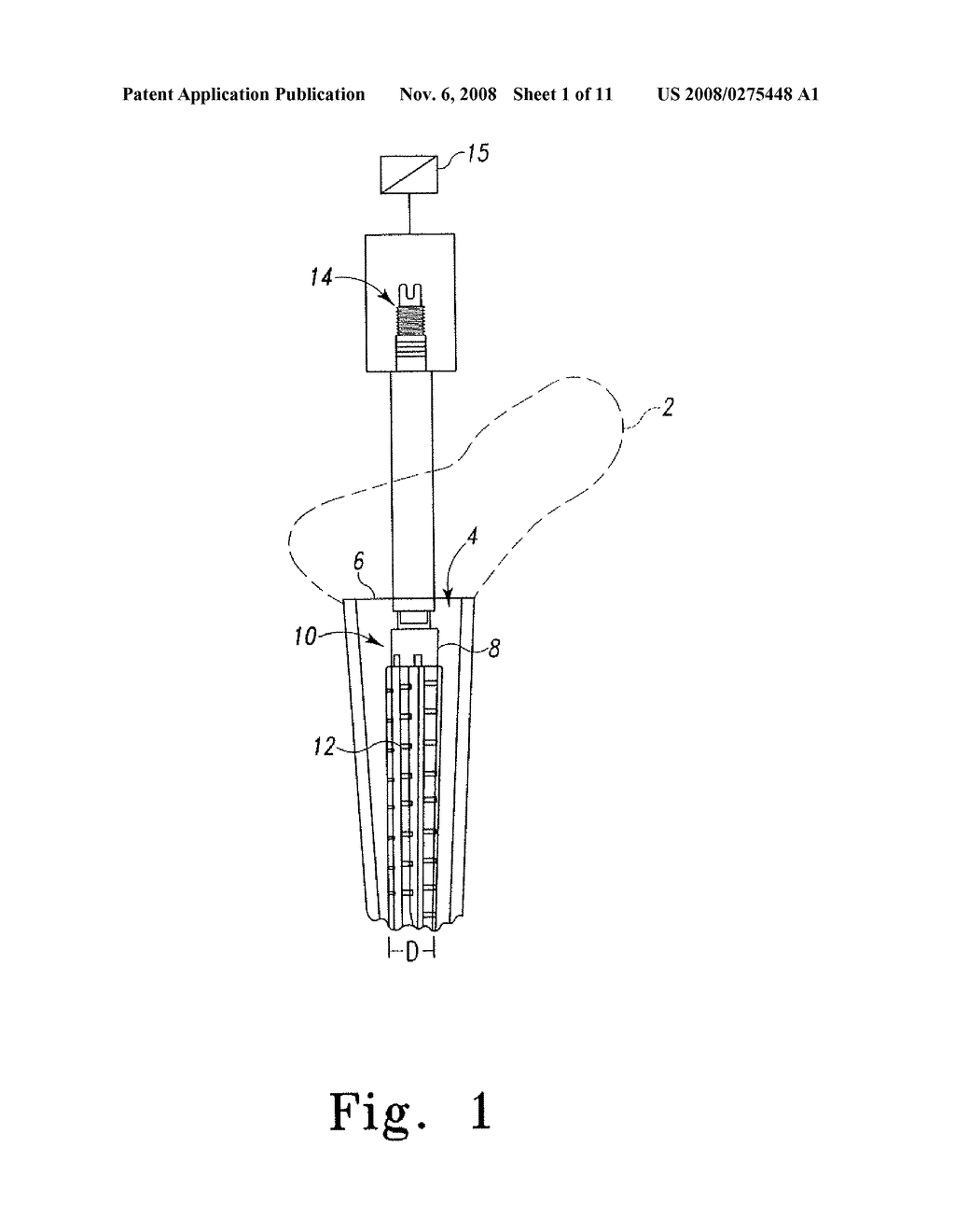 EXPANDABLE PROXIMAL REAMER - diagram, schematic, and image 02