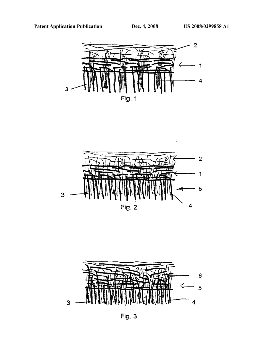 STRUCTURED MULTILAYERED NON-WOVEN FABRIC - diagram ... on