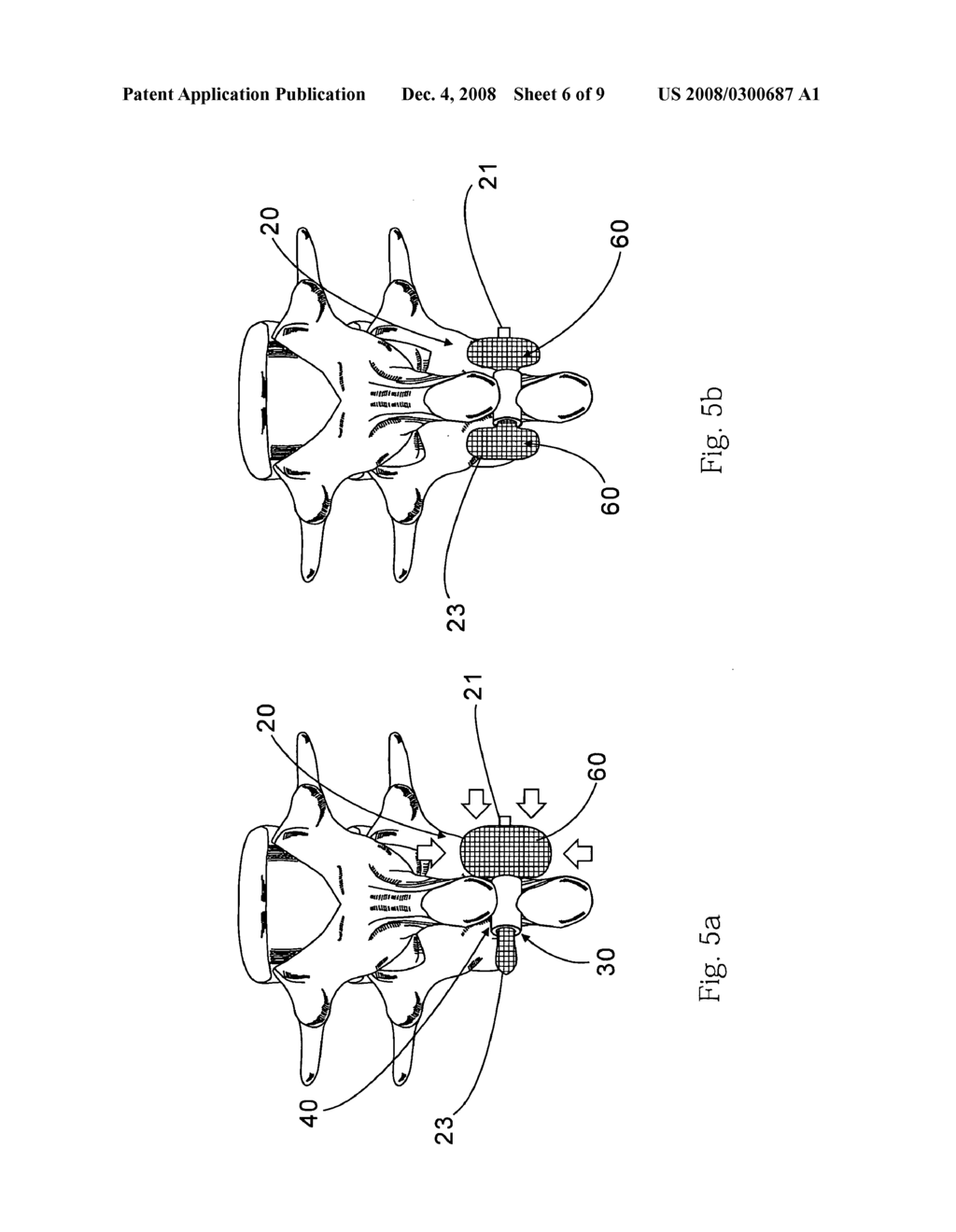 Medical implantation device for spine - diagram, schematic, and image 07