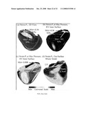 PATIENT-SPECIFIC IMAGE-BASED COMPUTATIONAL MODELING AND TECHNIQUES FOR HUMAN HEART SURGERY OPTIMIZATION diagram and image