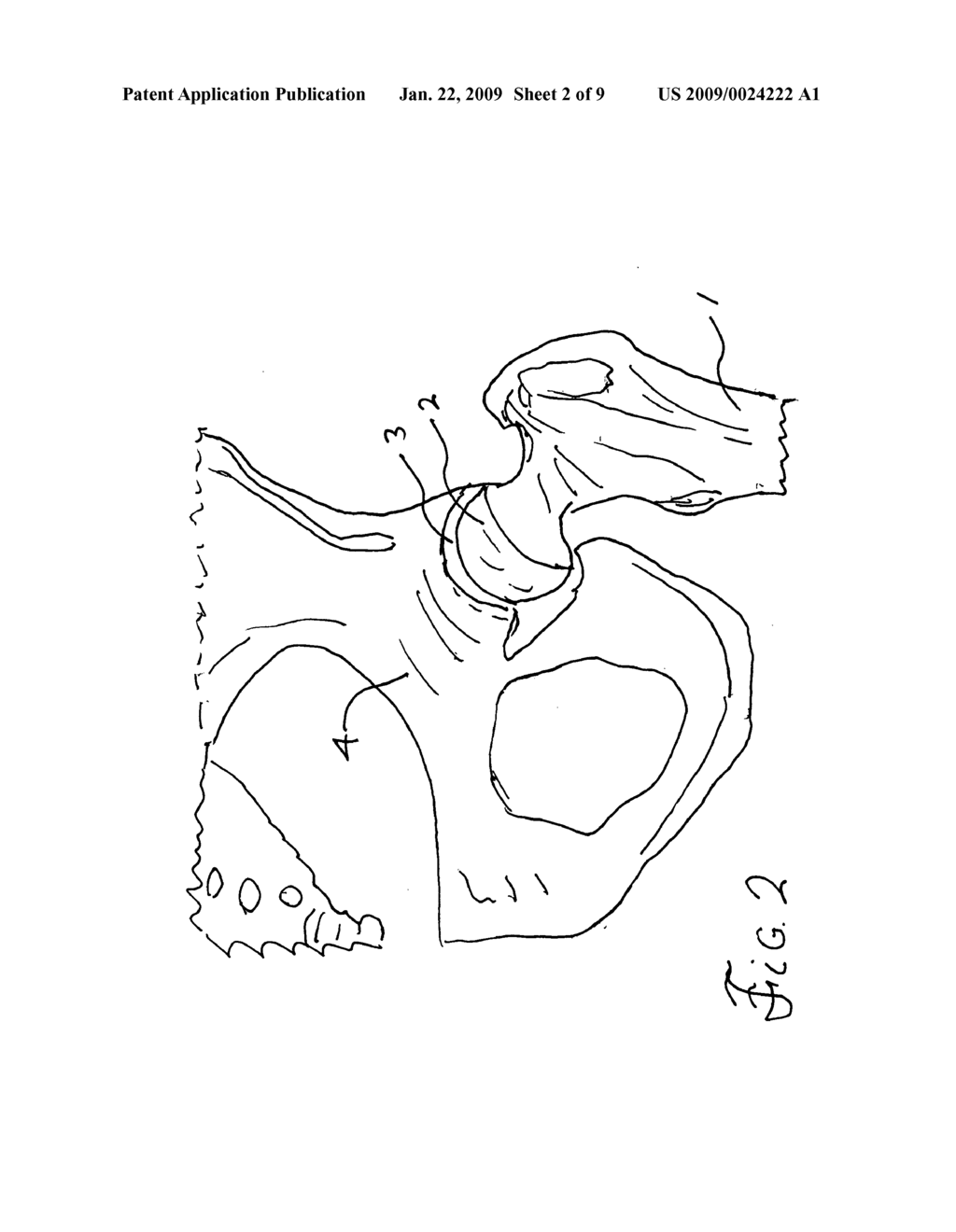 Apparatus For Total Hip Replacement For Cases Of Hip Ankylosis And