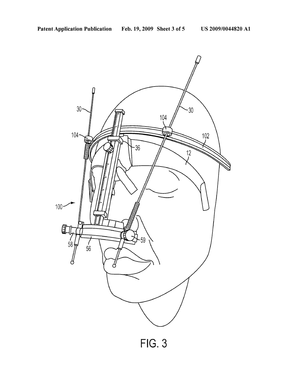 Stencils and gauging device for aesthetically pleasing eyebrow shaping - diagram, schematic, and image 04