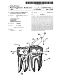 System to whiten interproximal surfaces of adjacent teeth diagram and image