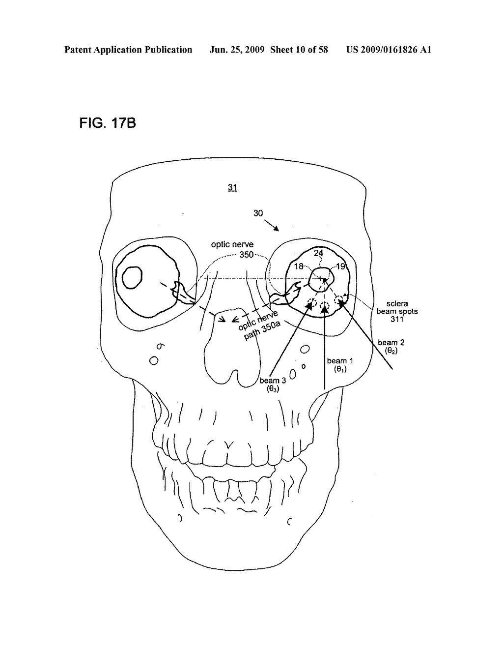 METHODS AND DEVICES FOR ORTHOVOLTAGE OCULAR RADIOTHERAPY AND TREATMENT PLANNING - diagram, schematic, and image 11