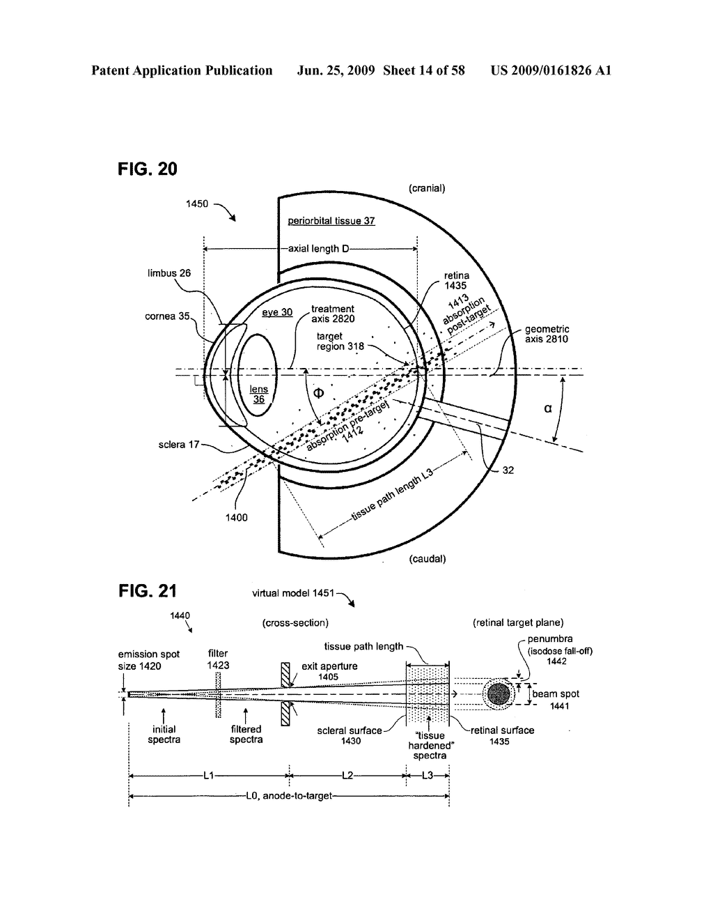METHODS AND DEVICES FOR ORTHOVOLTAGE OCULAR RADIOTHERAPY AND TREATMENT PLANNING - diagram, schematic, and image 15