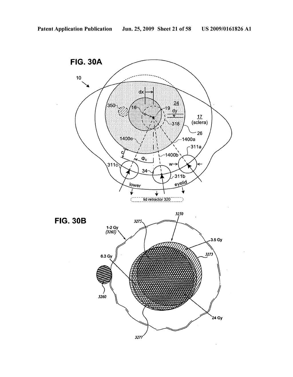 METHODS AND DEVICES FOR ORTHOVOLTAGE OCULAR RADIOTHERAPY AND TREATMENT PLANNING - diagram, schematic, and image 22