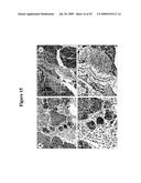 COMPOSITIONS AND METHODS FOR TREATING CANCER diagram and image