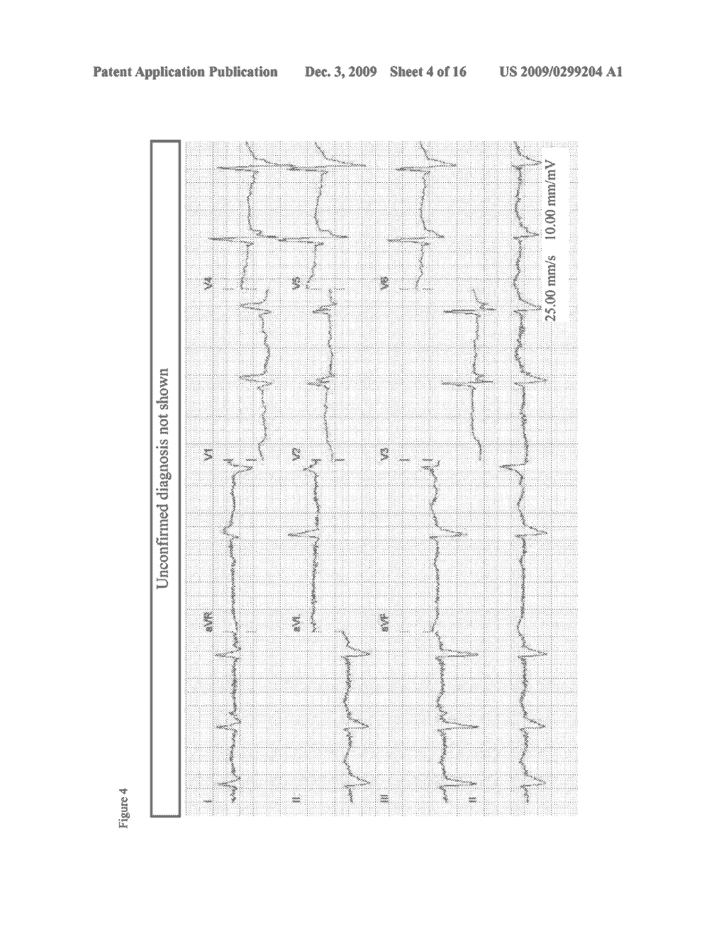 MOBILE- AND WEB-BASED 12-LEAD ECG MANAGEMENT - diagram, schematic, and image 05