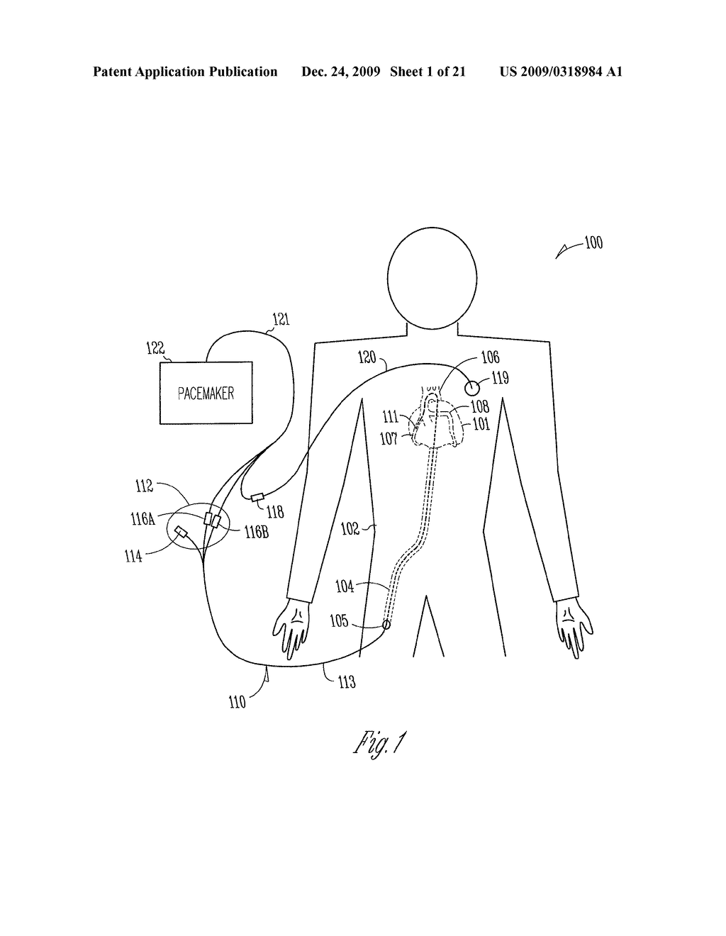 Pacemaker Circuit Diagram Trusted Wiring Combination Lock 4 Controlcircuit Seekiccom External With Automatic Cardioprotective Pacing Protocol Stimulating