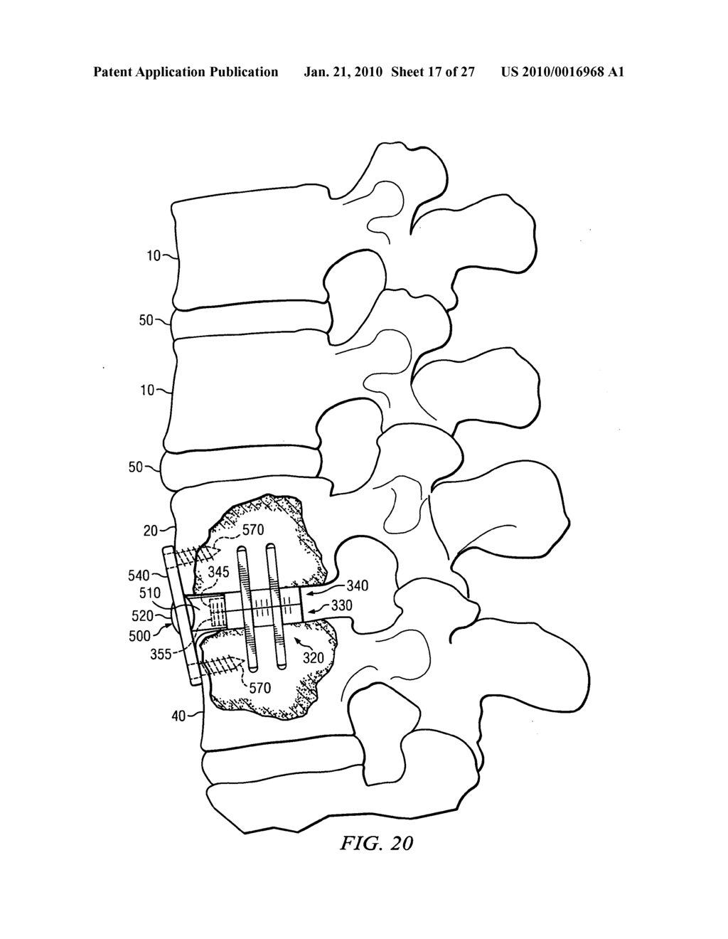 Spondylolisthesis correction apparatus and method - diagram, schematic, and image 18