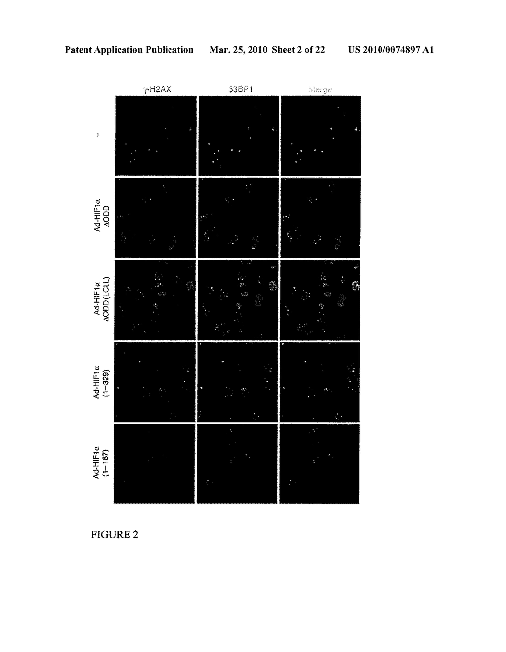 Methods and Compositions related to HIF-1 alpha - diagram, schematic, and image 03