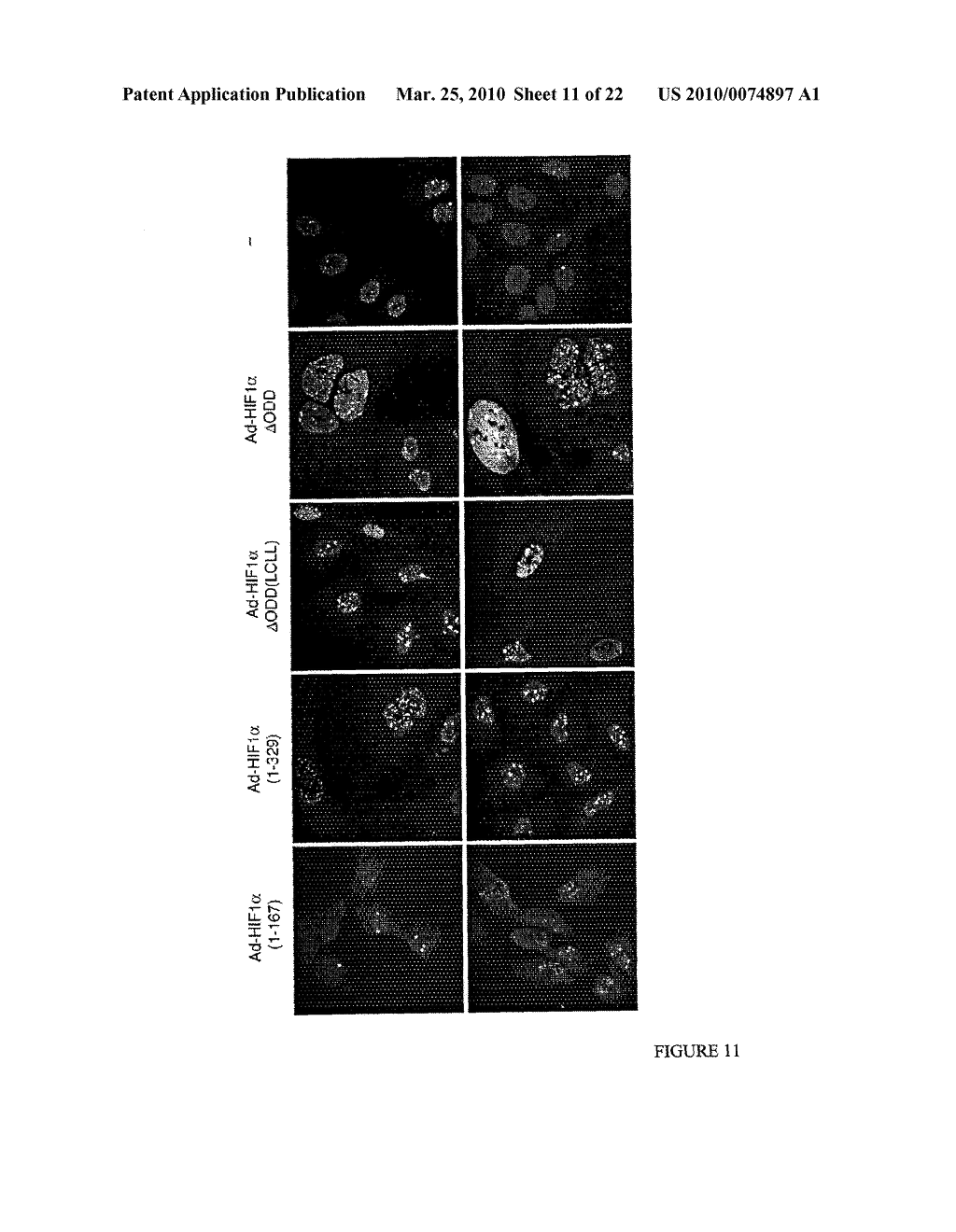 Methods and Compositions related to HIF-1 alpha - diagram, schematic, and image 12