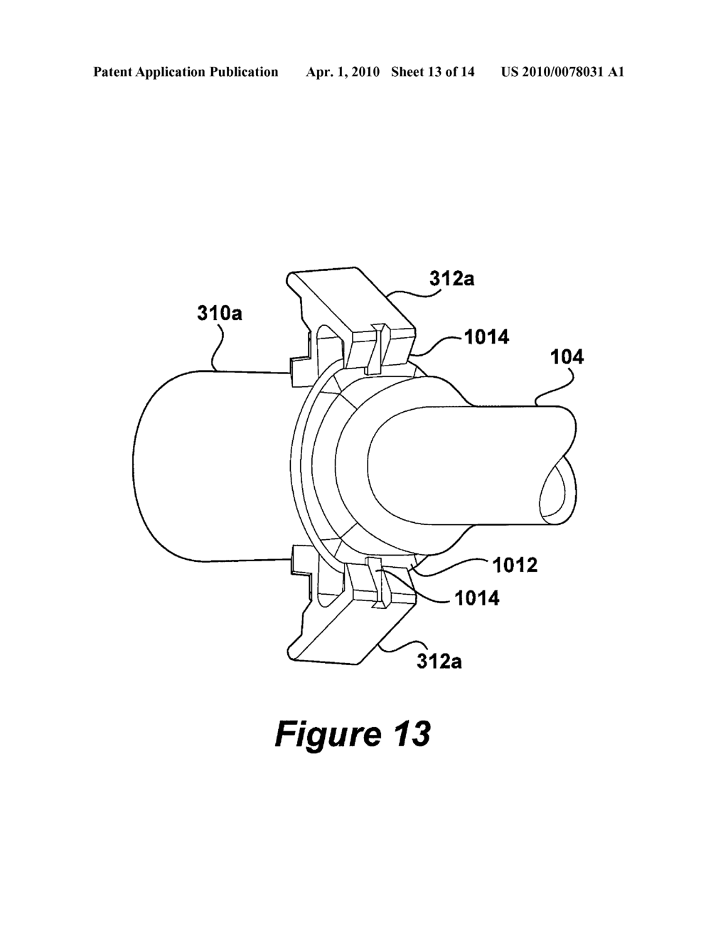 medical device tube having a flange with opposing support ears for Diagram of the Middle and Inner Ear medical device tube having a flange with opposing support ears for improved alignment and retention of an inner cannula in an outer cannula diagram