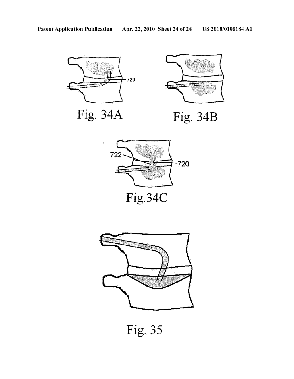 METHOD AND STRUCTURE FOR STABILIZING A VERTEBRAL BODY - diagram, schematic, and image 25