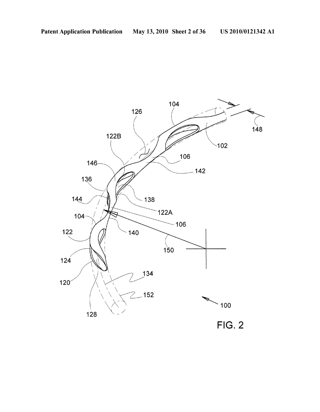 Methods and Apparatus for Delivering Ocular Implants Into the Eye - diagram, schematic, and image 03