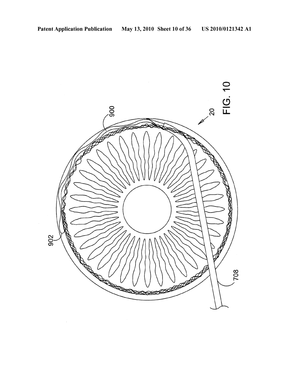 Methods and Apparatus for Delivering Ocular Implants Into the Eye - diagram, schematic, and image 11
