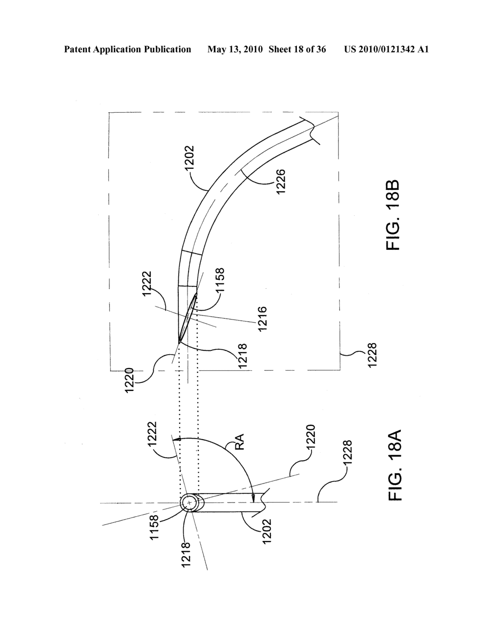 Methods and Apparatus for Delivering Ocular Implants Into the Eye - diagram, schematic, and image 19