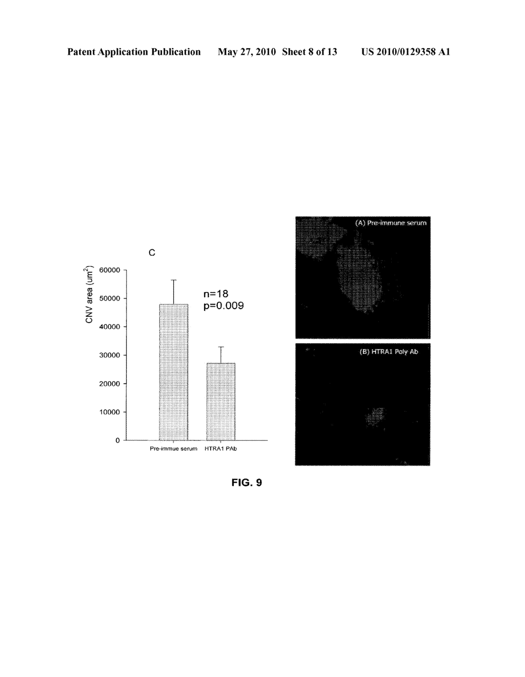 METHOD OF DETECTING OCULAR DISEASES AND PATHOLOGIC CONDITIONS AND TREATMENT OF SAME - diagram, schematic, and image 09
