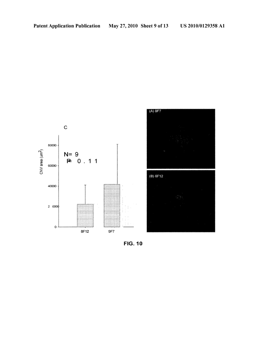 METHOD OF DETECTING OCULAR DISEASES AND PATHOLOGIC CONDITIONS AND TREATMENT OF SAME - diagram, schematic, and image 10
