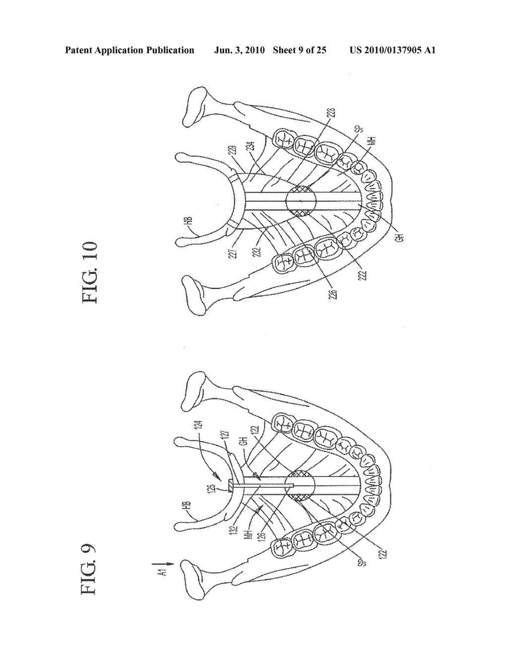 IMPLANT SYSTEMS AND METHODS FOR TREATING OBSTRUCTIVE SLEEP APNEA - diagram, schematic, and image 10