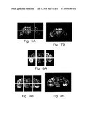 METHOD FOR COMPOSING CONFOCAL MICROSCOPY IMAGE WITH HIGHER RESOLUTION diagram and image