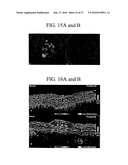 METHODS AND SYSTEMS OF TREATING AGE-RELATED MACULAR-DEGENERATION diagram and image