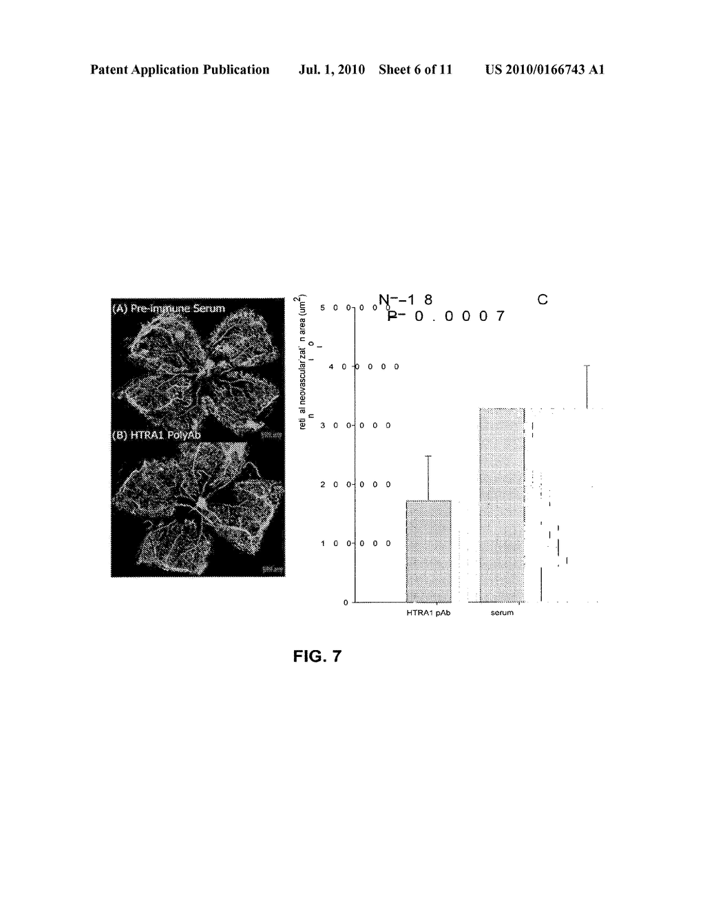 METHOD OF DETECTING OCULAR DISEASES AND PATHOLOGIC CONDITIONS AND TREATMENT OF SAME - diagram, schematic, and image 07