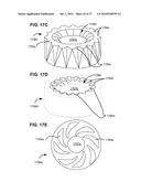 LOAD-SHARING BONE ANCHOR HAVING A NATURAL CENTER OF ROTATION AND METHOD FOR DYNAMIC STABILIZATION OF THE SPINE diagram and image