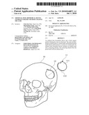 ARTIFICIAL DURA BIOMEDICAL DEVICE AND BRAIN SURGERY METHOD UTILIZING THE SAME diagram and image