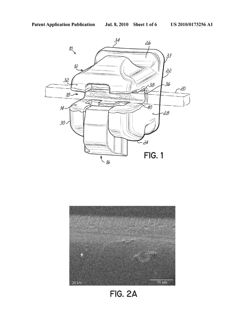 Surface Treated Polycrystalline Ceramic Orthodontic Bracket and Method of Making Same - diagram, schematic, and image 02