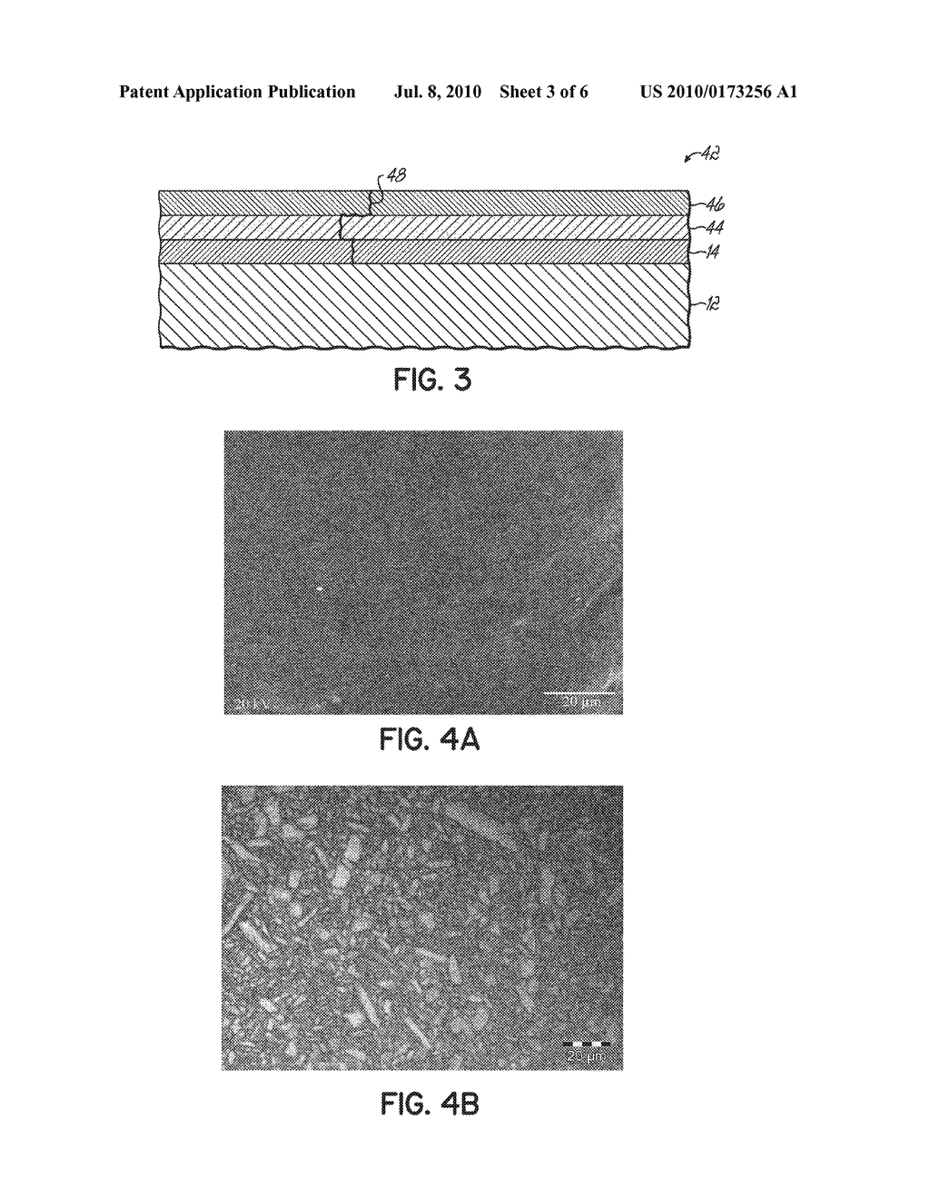 Surface Treated Polycrystalline Ceramic Orthodontic Bracket and Method of Making Same - diagram, schematic, and image 04