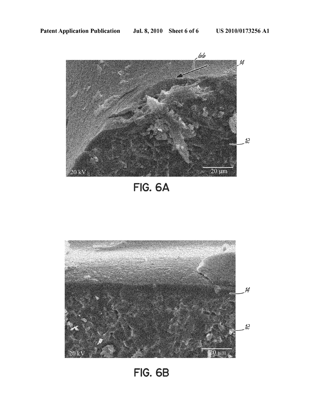 Surface Treated Polycrystalline Ceramic Orthodontic Bracket and Method of Making Same - diagram, schematic, and image 07