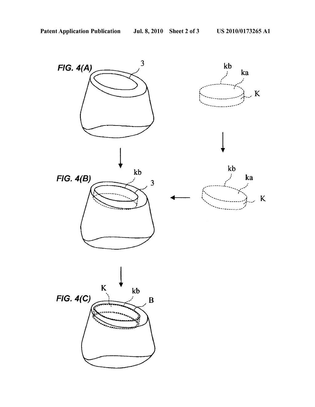 METHOD FOR CREATING THREE-DIMENSIONAL DATA OF POSITION OF OUTER PERIPHERY AT OCCLUSAL SURFACE SIDE OF KEEPER WITH RESPECT TO ABUTMENT FOR IMPLANT - diagram, schematic, and image 03