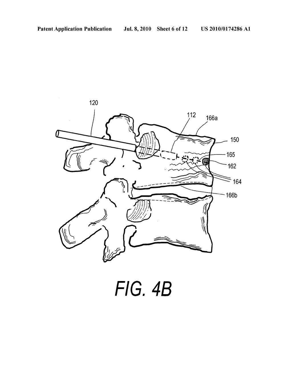 BONE TREATMENT SYSTEMS AND METHODS FOR INTRODUCING AN ABRADING STRUCTURE TO ABRADE BONE - diagram, schematic, and image 07