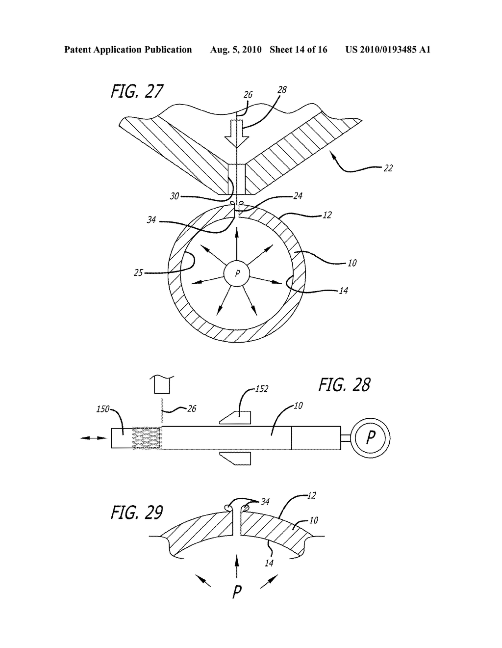 METHODS AND SYSTEMS FOR LASER CUTTING AND PROCESSING TUBING TO MAKE MEDICAL DEVICES - diagram, schematic, and image 15