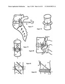 Intervertebral disc inserting device diagram and image