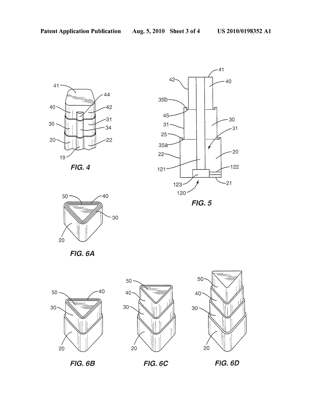 Implant with Nested Members and Methods of Use - diagram, schematic, and image 04