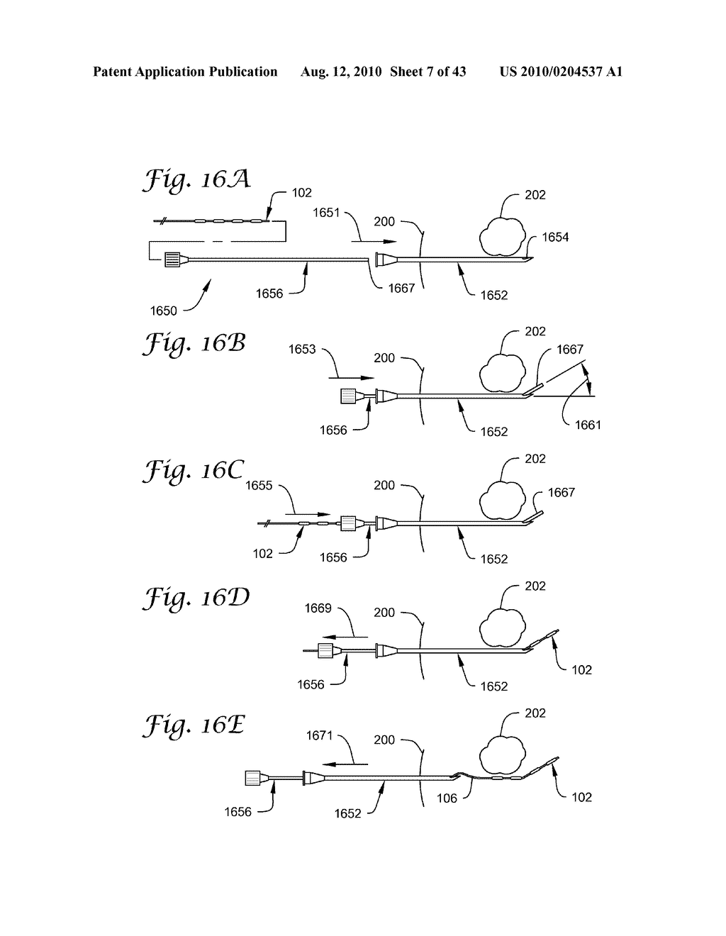 BRACHYTHERAPY APPARATUS AND METHODS FOR USING THEM - diagram, schematic, and image 08