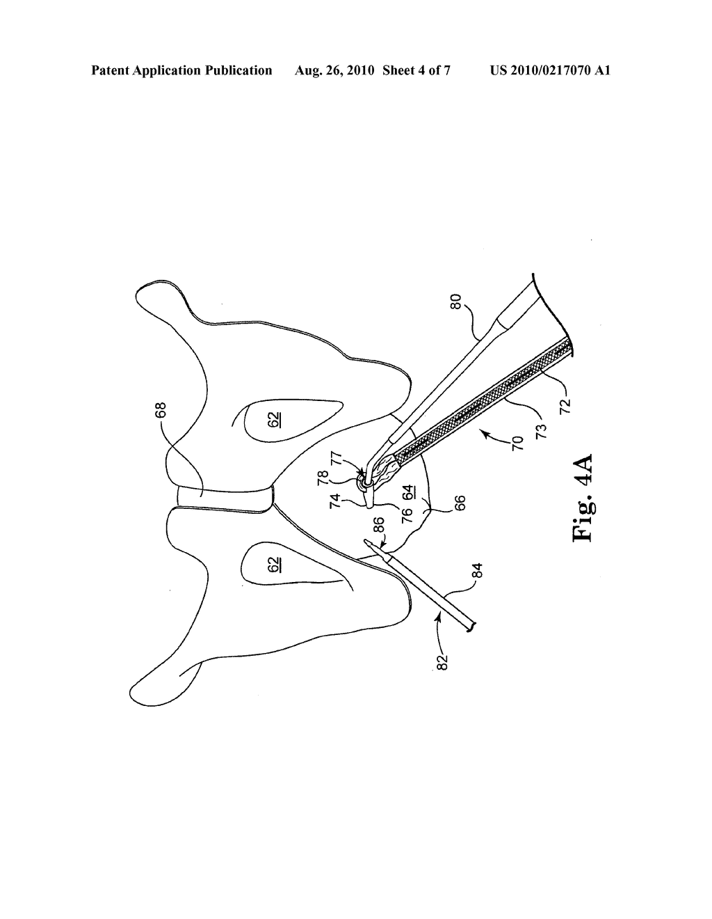 SURGICAL DEVICES AND METHODS FOR TREATING PELVIC CONDITIONS - diagram, schematic, and image 05