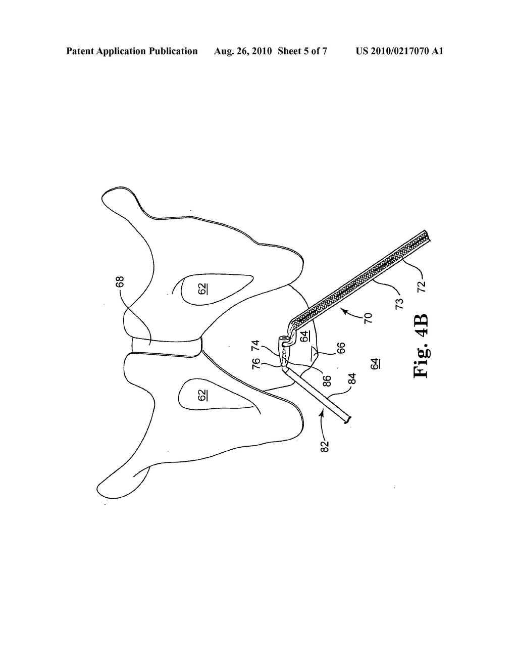 SURGICAL DEVICES AND METHODS FOR TREATING PELVIC CONDITIONS - diagram, schematic, and image 06