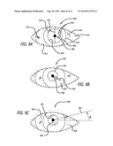 REAL-TIME SURGICAL REFERENCE INDICIUM APPARATUS AND METHODS FOR INTRAOCULAR LENS IMPLANTATION diagram and image